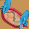 Operate Now: Appendix Surgery - Point and Click Games